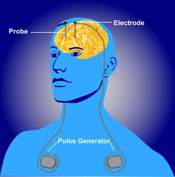 Schematisch overzicht van 'diepe hersenstimulatie' waarbij micro-elektronische implantaten signalen geven naar specifieke hersengebieden om onvrijwillig gedrag te controleren.